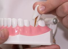Запись на прием к стоматологу ортопеду